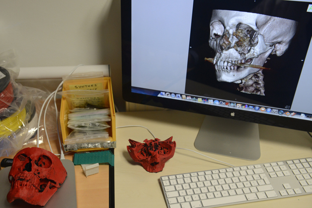 A close up taken on March 12, 2014 at the University Hospital in Dijon, eastern France, shows a 3D printer used for the reproduction of the skull of a patient. Dijon's pioneer surgery service uses a 3D printer to prepare tailored facial implants with greater precision, and to reduce operation length.