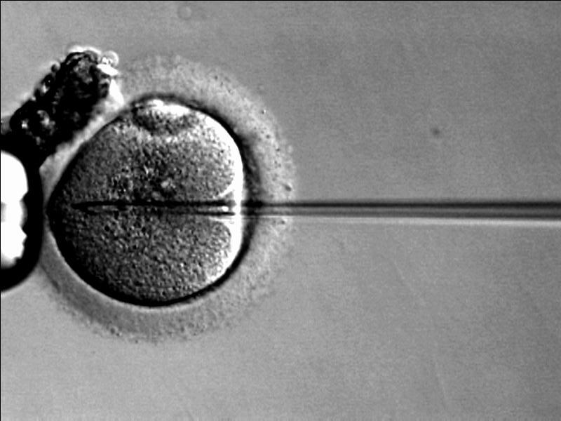 Intracytoplasmic sperm injection is an in vitro fertilization procedure in which a single sperm is injected directly into an egg.